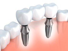 dental implants dentist anderson